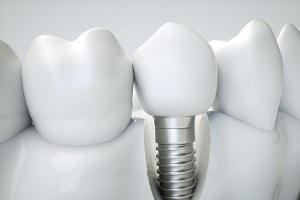 Dental İmplant