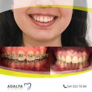 Döşemealtı Ortodonti