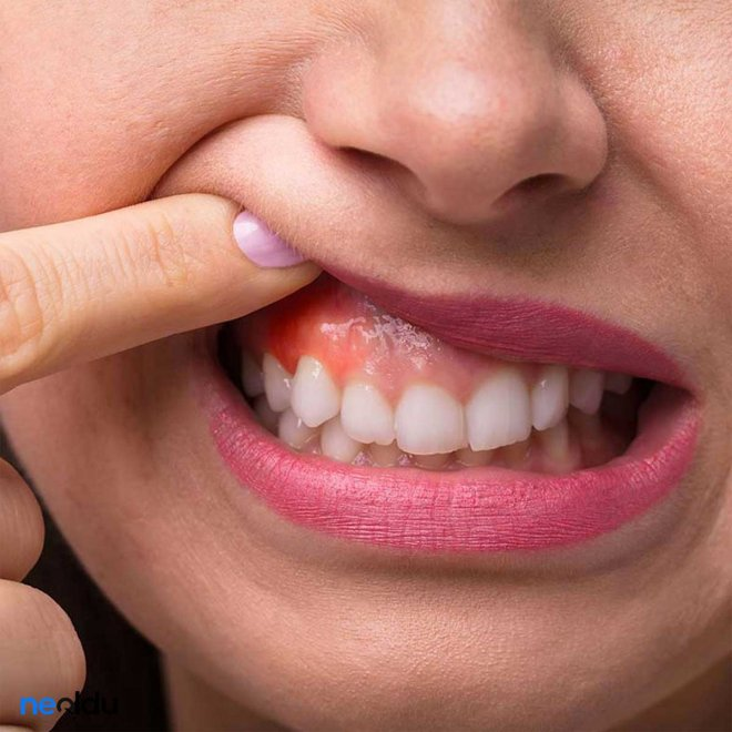 Periodontoloji Tedavisi