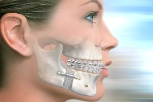 Döşemealtı Diş Hastanesi