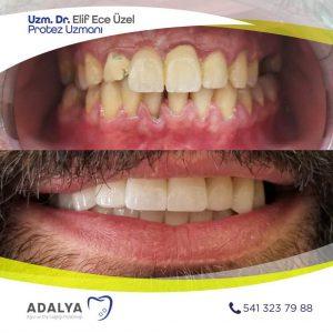 Antalya Döşemealtı Diş Polikliniği