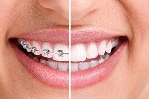 Döşemealtı ortodonti doktorları