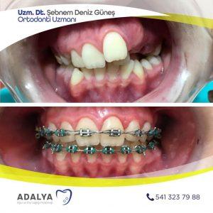 Döşemealtı Diş Hekimleri