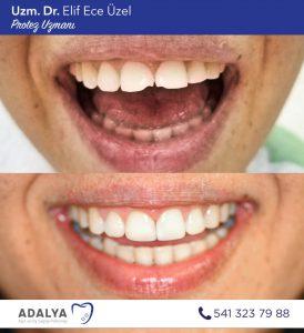 Döşemealtı diş kliniği