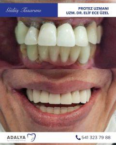 antalya döşemealtı diş hastanesi